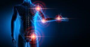 Aktywni chorzy – na choroby reumatyczne