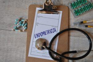 Endometrioza: objawy, przyczyny, diagnoza i leczenie