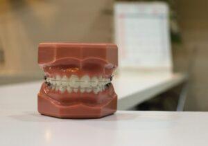 Jak długo trzeba nosić aparat ortodontyczny?