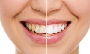 Żółte zęby – główne powody żółtego koloru zębów
